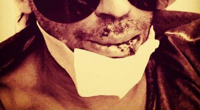 Ανατριχιαστικό: ΠΑΡΑΜΟΡΦΩΜΕΝΟ το πρόσωπο επώνυμου της εγχώριας show biz μετά από ατύχημα (εικόνα)